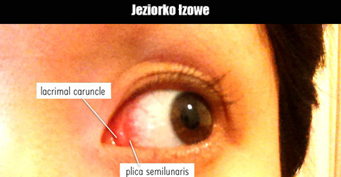 plica semilunaris swollen eye allergies - 770×440